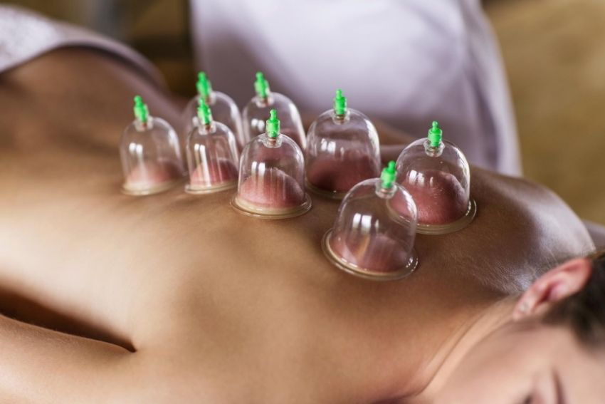 Implementation of Cupping to release pain
